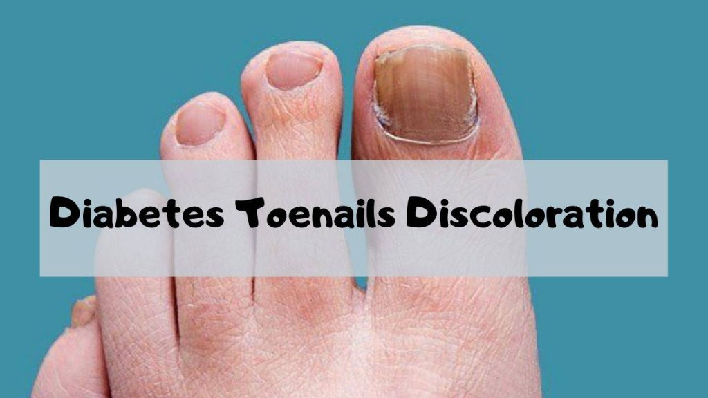 Having diabetes toenails discoloration can be an embarrassing condition for some people. It may be the beginning of a new type of condition in which they might be embarrassed about their feet and toes. Discoloration of your nails is something that is not going to just go away on its own. In fact, it is probably more common for your nails to appear darker with your diabetes. It is important to note that if you do not see this, you have probably already had diabetes toenails discoloration. Diabetes toenails may also be caused by something as simple as being overweight. If you have been overweight, your feet and toes will take up more room. The toenails will show the weight difference because they are under the surface of the skin. As your feet get heavier, so will your nails. If you already have diabetes toenails, then you may need to learn how to eliminate this condition with diet, exercise and some type of medication. Because nail fungus is usually a problem that results from diabetes, it is also likely that you may not want to put on any type of polish to your nails, even if it is very expensive. If you have been diagnosed with diabetes toenails, you might not want to worry about the cost of your nail polish because there are many other things that you can buy and many different types of manicures and pedicures that you can schedule for yourself. This is not to say that if you have diabetes toenails that you will have to take care of them yourself, but the fact remains that you have a medical condition and you are expected to pay attention to it and take care of it. With diabetes toenails, the root cause of the problem can often be attributed to the fact that your nail fungus may have grown in the moist areas of your feet. Nail fungus thrives in dark, warm places. Since diabetes toenails are affected by nail fungus, these areas of the foot are prime areas for this fungus to grow. Diabetes toenails can be caused by many different conditions and issues. These include things like diabetes itself, heredity and pregnancy. It is also possible that the fungus that causes diabetes toenails has spread to the skin in other parts of the body that also contain nail. When a nail fungal infection gets into the nail itself, the nail itself becomes infected and can eventually lead to toenail discoloration. People who suffer from diabetes toenails, or problems with nail fungus, should try to get these issues treated early on so that the condition does not get out of control. People who are really healthy might think that having toenails that look yellow is simply normal. Many people who have diabetes toenails may have a hard time believing that having yellow toenails is embarrassing, but the truth is that the appearance of the yellow toenails is a result of toenail discoloration. Nail discoloration can actually be caused by many different things, including diabetes toenails. Diabetes toenails discoloration can also be caused by eating a lot of food that contains too much sugar in it, and it can also be caused by a variety of different medications. It is important for people who have diabetes toenails to remember that they have a problem that needs to be taken care of in order to improve their health. By learning what causes diabetes toenails discoloration, they can begin to look into what causes the problem and possibly treat it. They can also learn how to find ways to help treat their condition, as well as how to prevent further diabetes toenails discoloration
